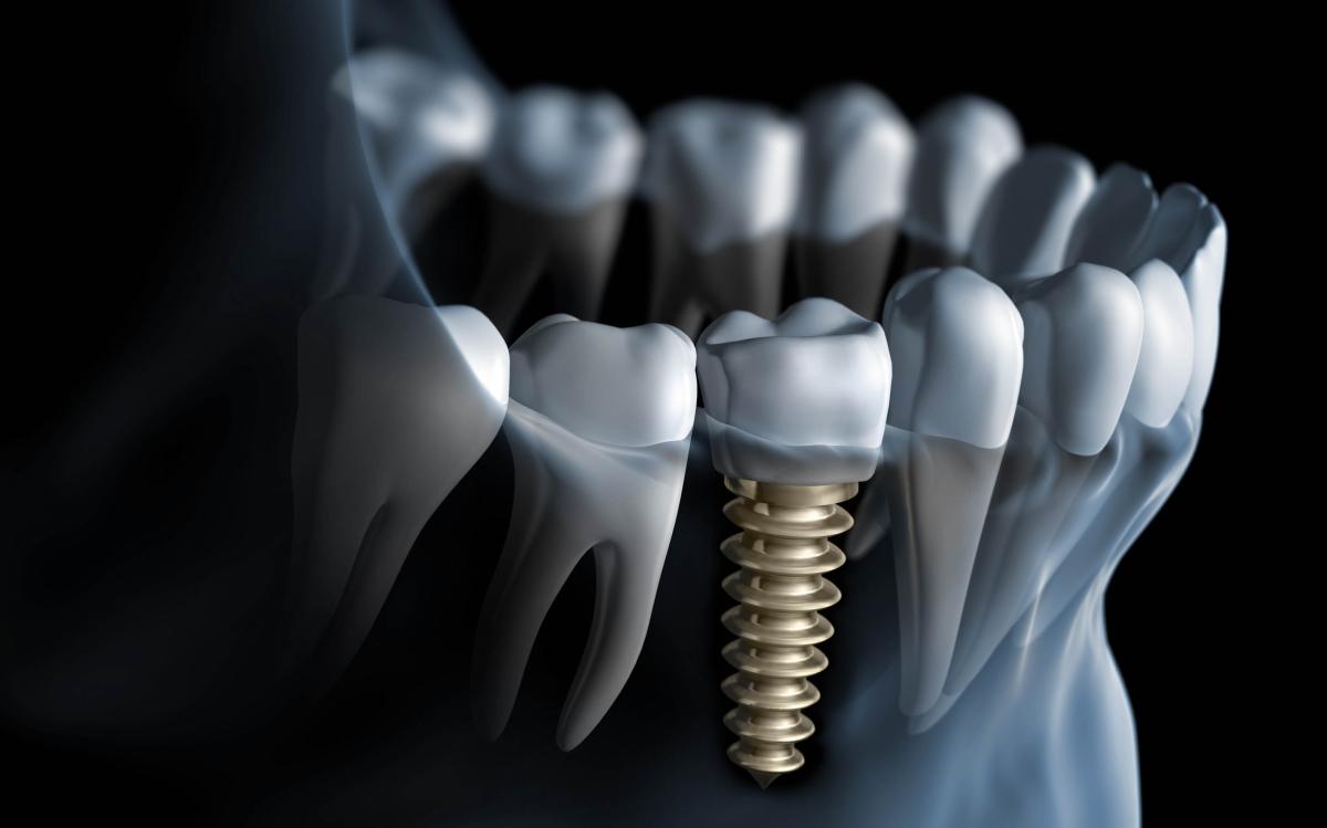 植牙是什麼-植牙前需要了解的 2、3 事