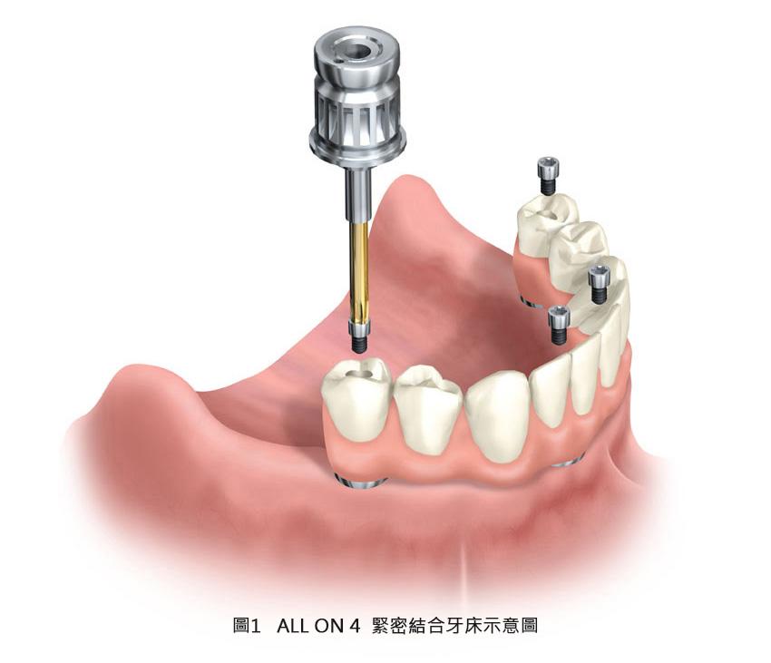 一段實現自信笑容的新植牙療程:All on 4全口重建技術