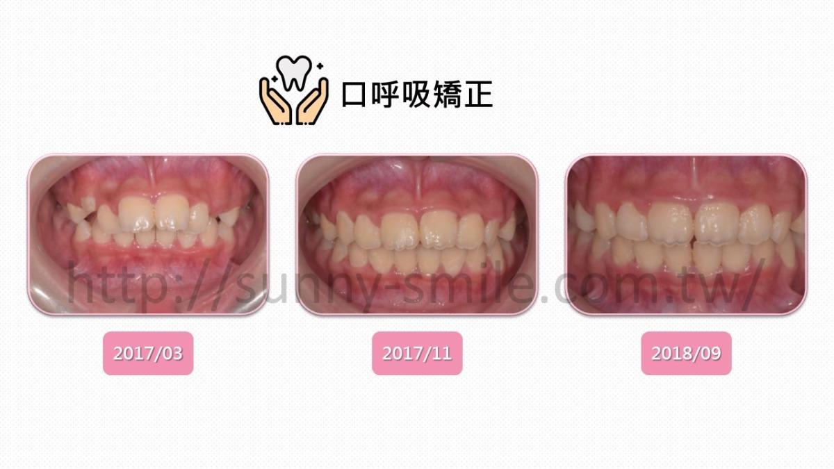 MRC改善暴牙口呼吸,免於牙套矯正