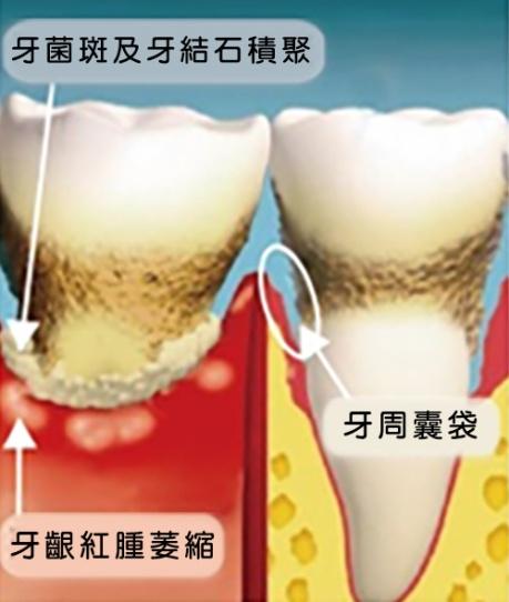 牙周病圖示2