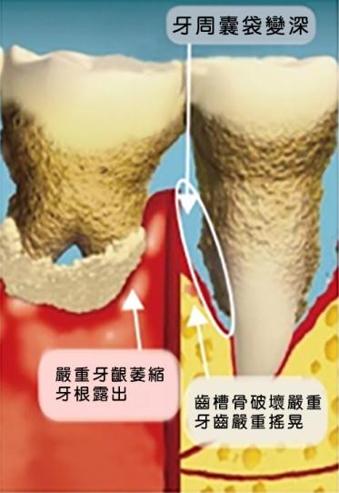 牙周病圖示3