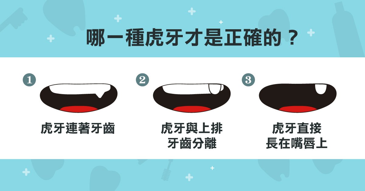 大家覺得哪一種虎牙才是正確的呢?