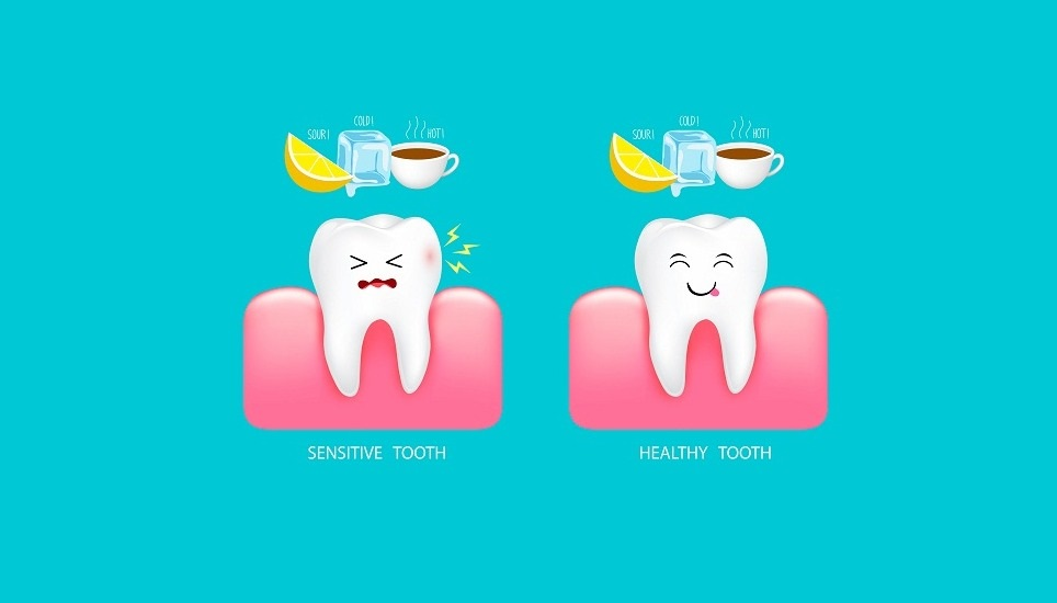 敏感性牙齒,需要注意的三件事