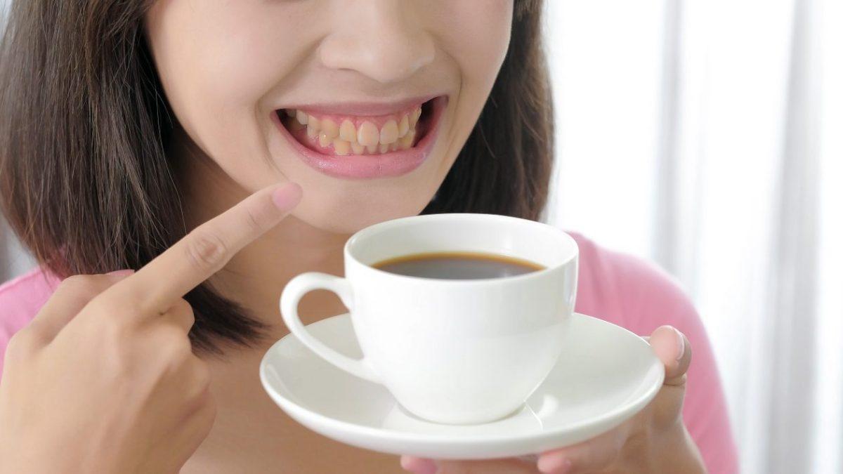 要如何選擇適合自己的牙齒美白?